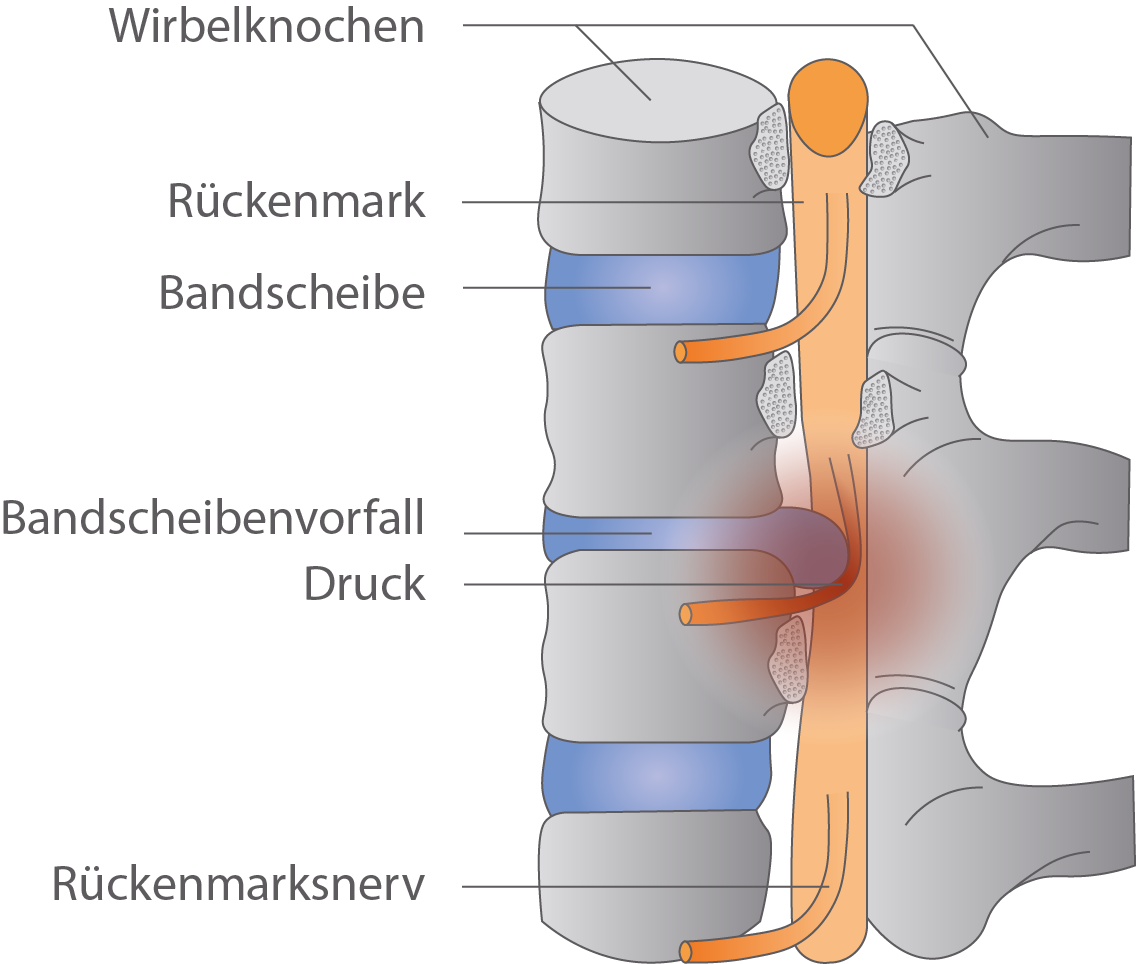 Rückenmark - Nervensystem - Bio - Digitales Schulbuch - Skripte ...